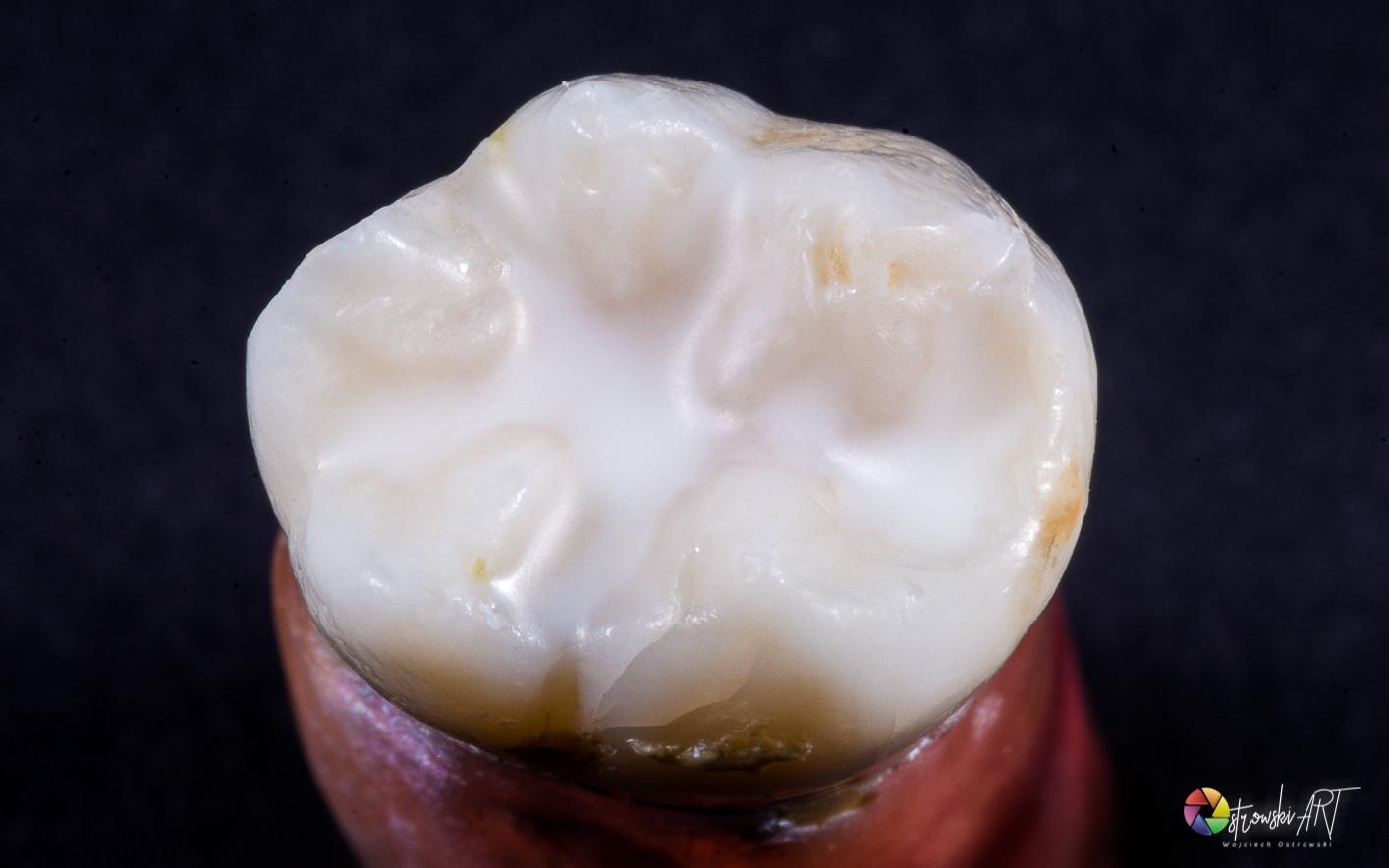 Lakowanie i lakierowanie – profilaktyka stomatologiczna