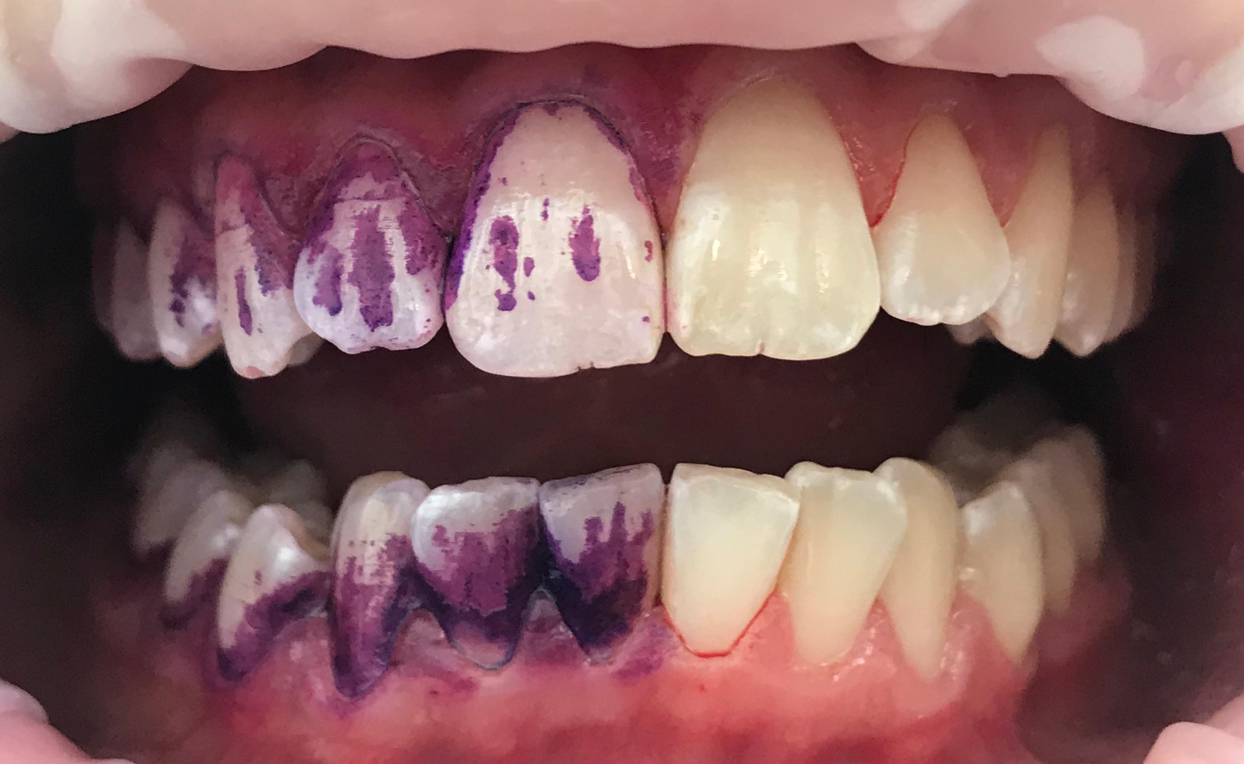 Profesjonalny instruktaż higieny jamy ustnej