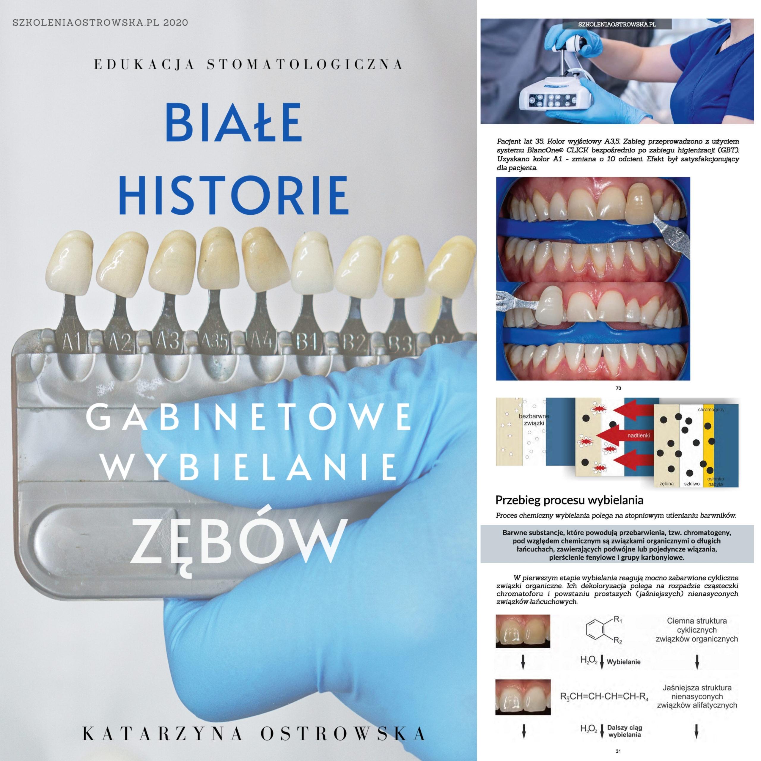 E-book Białe Historie. Gabinetowe wybielanie zębów