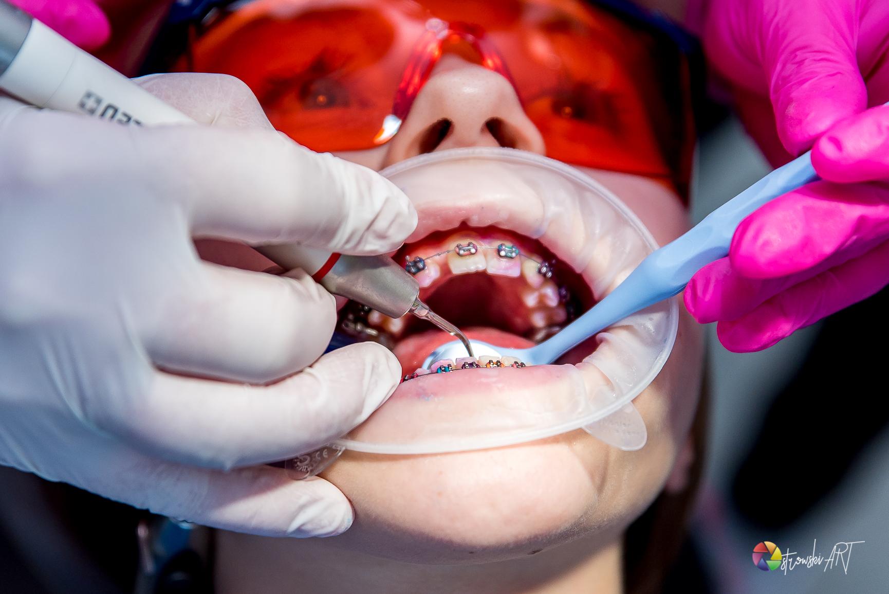 Warsztat Krakdent: Pacjent ortodontyczny w gabinecie higieny